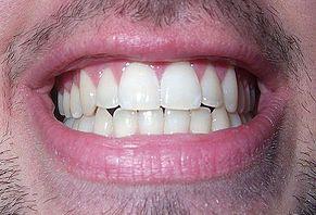 ➤ dientes biodescodificación Ventajas para comprar en LIBRERIAESOTERICA.NET